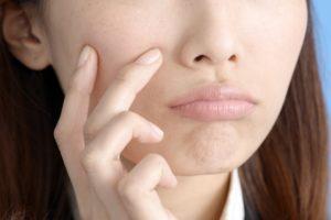にきびの洗顔方法