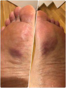 足底筋 腱炎 実際